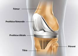 gonarthrose orthopédie Tunisie