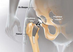 Prothèse hanche Tunisie