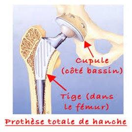 Prothèse totale hanche Tunisie