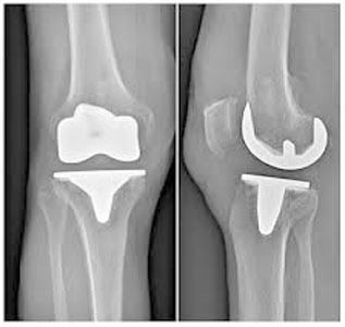 Radiographie prothèse genou Tunisie