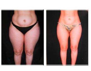 liposuccion avant-après