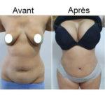 Chirurgie esthétique Tunisie: augmentation mammaire