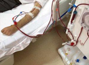 Hémodialyse en Tunisie