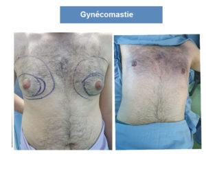 Liposuccion gynécomastie Tunisie
