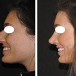 Chirurgie esthetique nez Tunisie